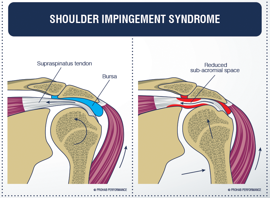 Shoulder Impingement Syndrome - Full Function Rehabilitation ...
